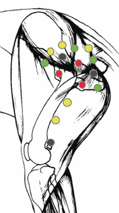 Akupunktur og hofteledsdysplasi - guldimplantater placering