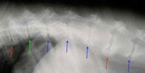 Ryg og lænd (spondylose)